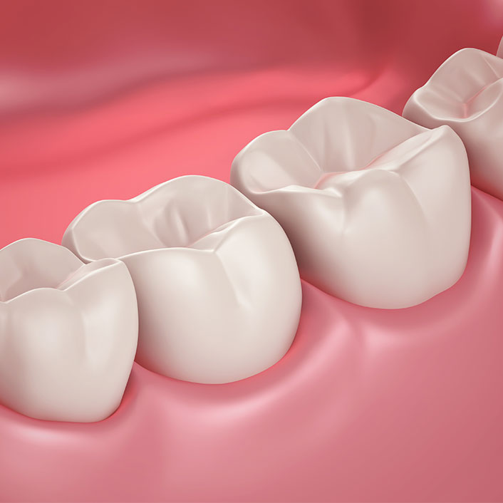 Periodontal Plastic Surgery - Dental Services
