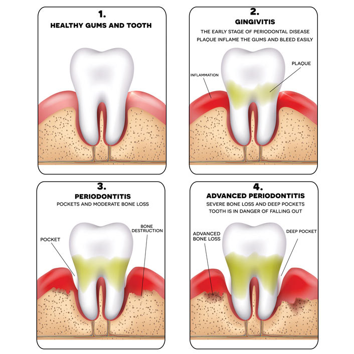 Gum Treatment - Dental Services
